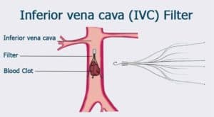 Inferior Vena Cava to stop lower body Blood Clots (DVT-deep vein thrombosis) from traveling (embolizing) to the right side of the heart